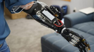 first-hand-experience:-deep-learning-lets-amputee-control-prosthetic-hand,-video-games