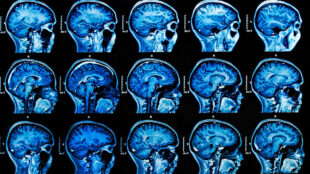 keeping-an-ai-on-mris:-industry-experts-share-latest-on-ai-and-machine-learning-in-medical-imaging